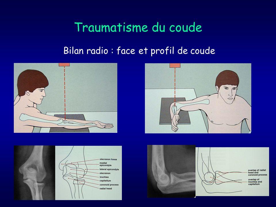 Traumatisme du coude Bilan radio : face et profil de coude
