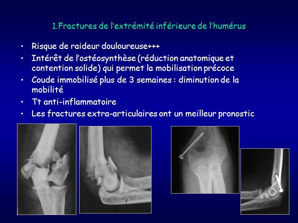 1.Fractures de lextrémité inférieure de lhumérus Risque de raideur douloureuse+++ Intérêt de lostéosynthèse (réduction anatomique et contention solide
