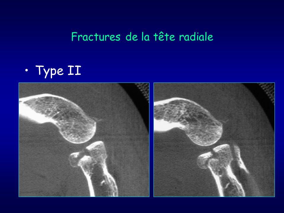 Fractures de la tête radiale Type II