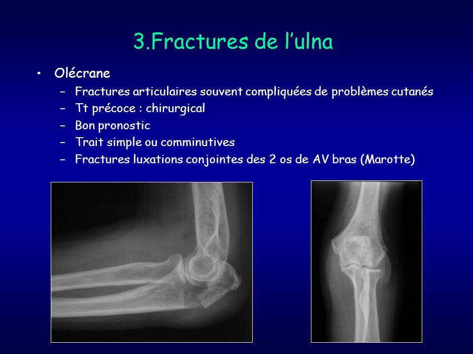 3.Fractures de lulna Olécrane –Fractures articulaires souvent compliquées de problèmes cutanés –Tt précoce : chirurgical –Bon pronostic –Trait simple