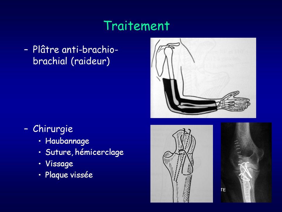 Traitement –Plâtre anti-brachio- brachial (raideur) –Chirurgie Haubannage Suture, hémicerclage Vissage Plaque vissée
