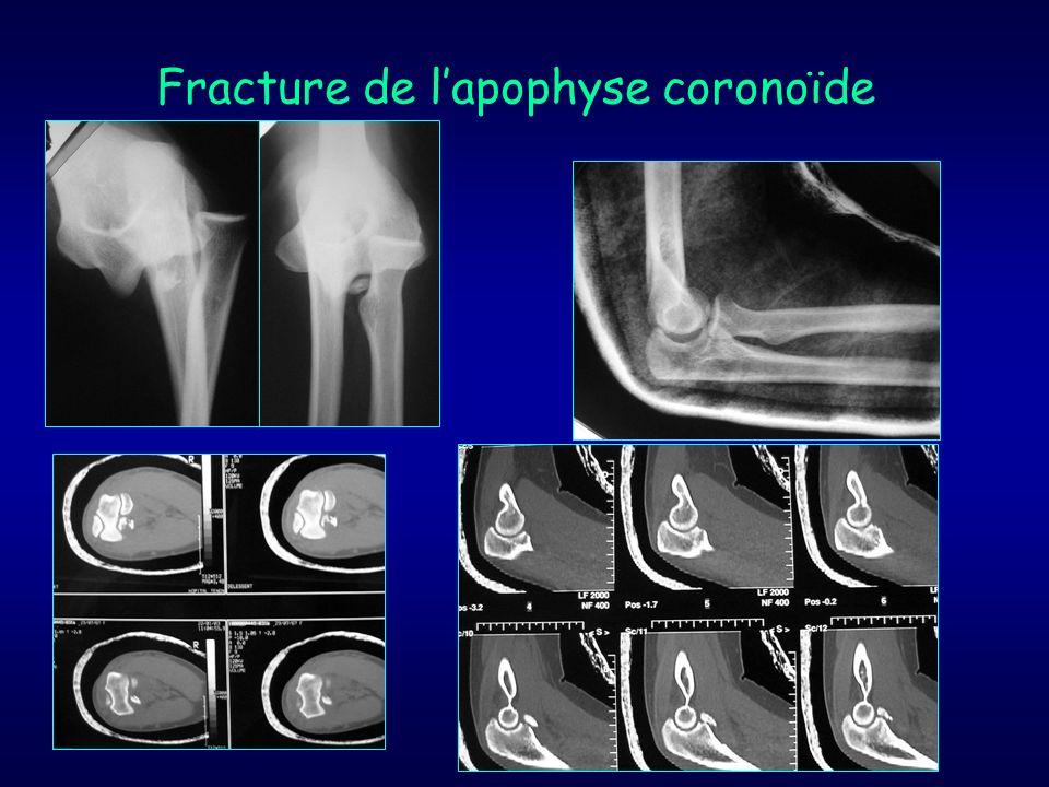 Fracture de lapophyse coronoïde