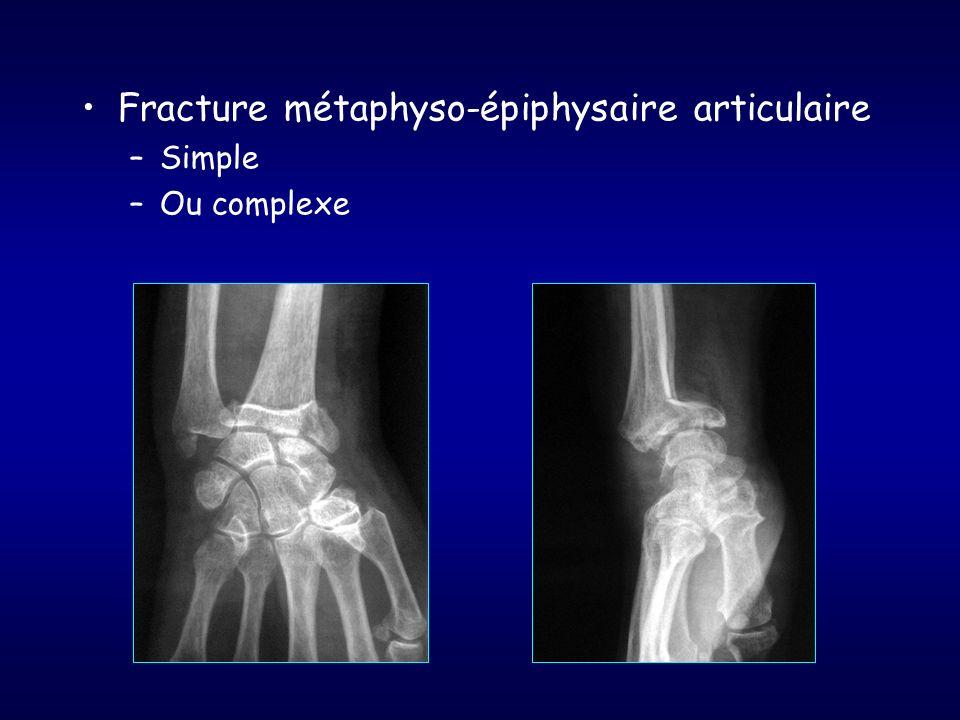 Fracture métaphyso-épiphysaire articulaire –Simple –Ou complexe
