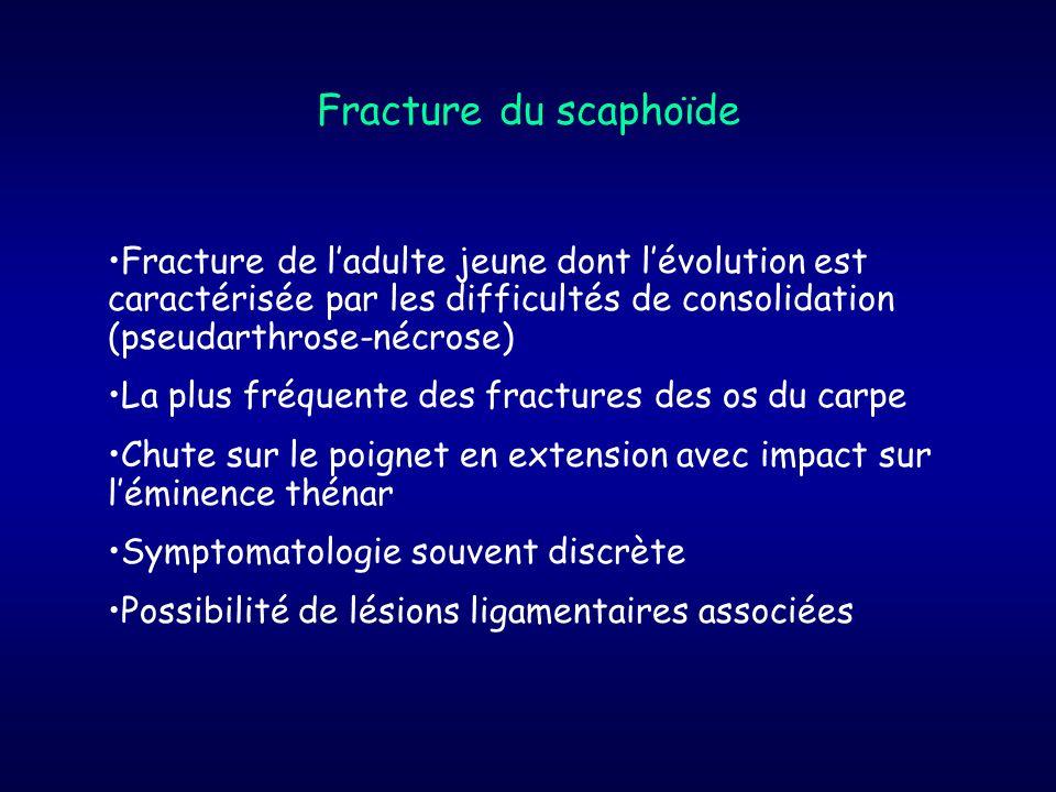 Fracture de ladulte jeune dont lévolution est caractérisée par les difficultés de consolidation (pseudarthrose-nécrose) La plus fréquente des fracture