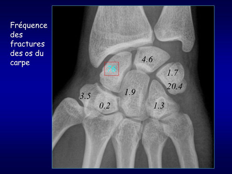 76 4.6 1.7 3.5 0.2 1.9 1.3 20.4 Fréquence des fractures des os du carpe