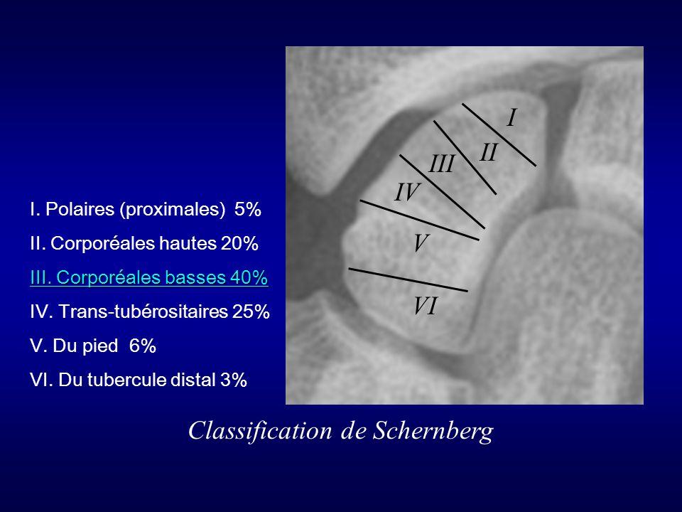 I II III IV V VI Classification de Schernberg I. Polaires (proximales) 5% II. Corporéales hautes 20% III. Corporéales basses 40% IV. Trans-tubérositai