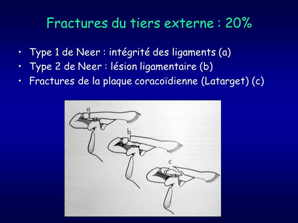 Fractures du tiers externe : 20% Type 1 de Neer : intégrité des ligaments (a) Type 2 de Neer : lésion ligamentaire (b) Fractures de la plaque coracoïd