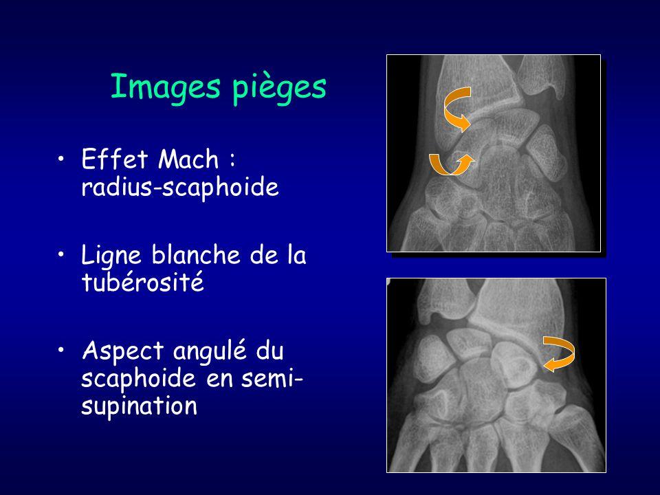 Images pièges Effet Mach : radius-scaphoide Ligne blanche de la tubérosité Aspect angulé du scaphoide en semi- supination