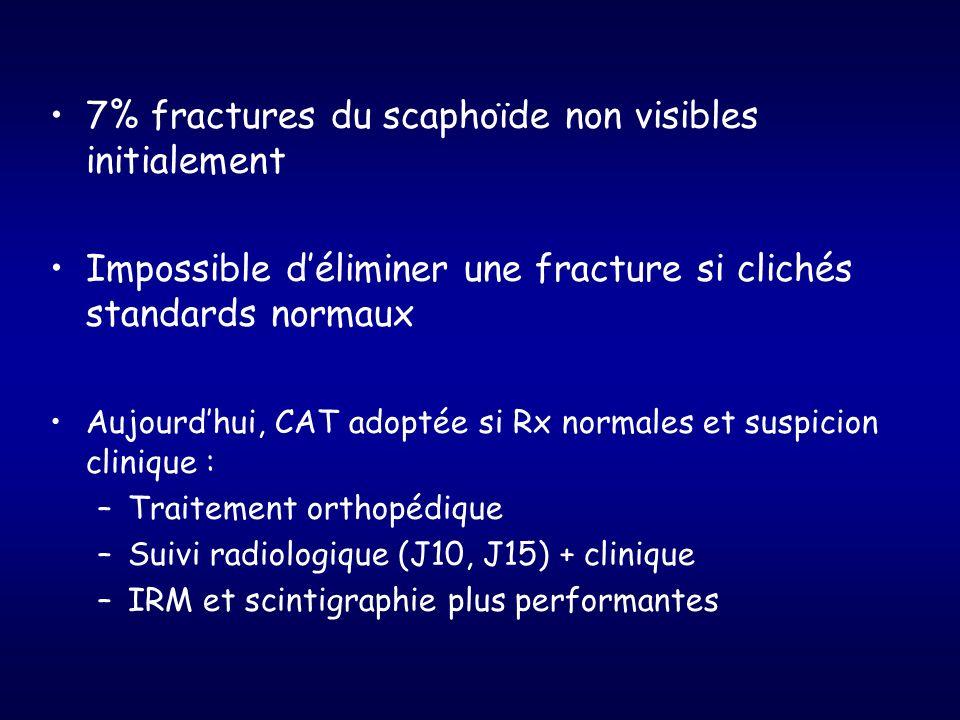 7% fractures du scaphoïde non visibles initialement Impossible déliminer une fracture si clichés standards normaux Aujourdhui, CAT adoptée si Rx norma