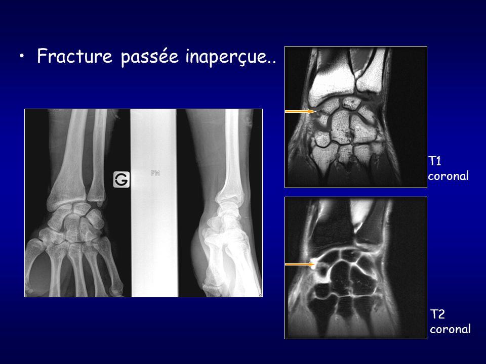 Fracture passée inaperçue.. T1 coronal T2 coronal