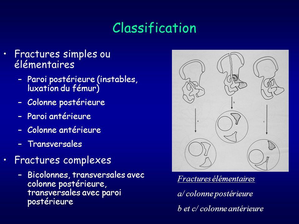 Classification Fractures simples ou élémentaires –Paroi postérieure (instables, luxation du fémur) –Colonne postérieure –Paroi antérieure –Colonne ant