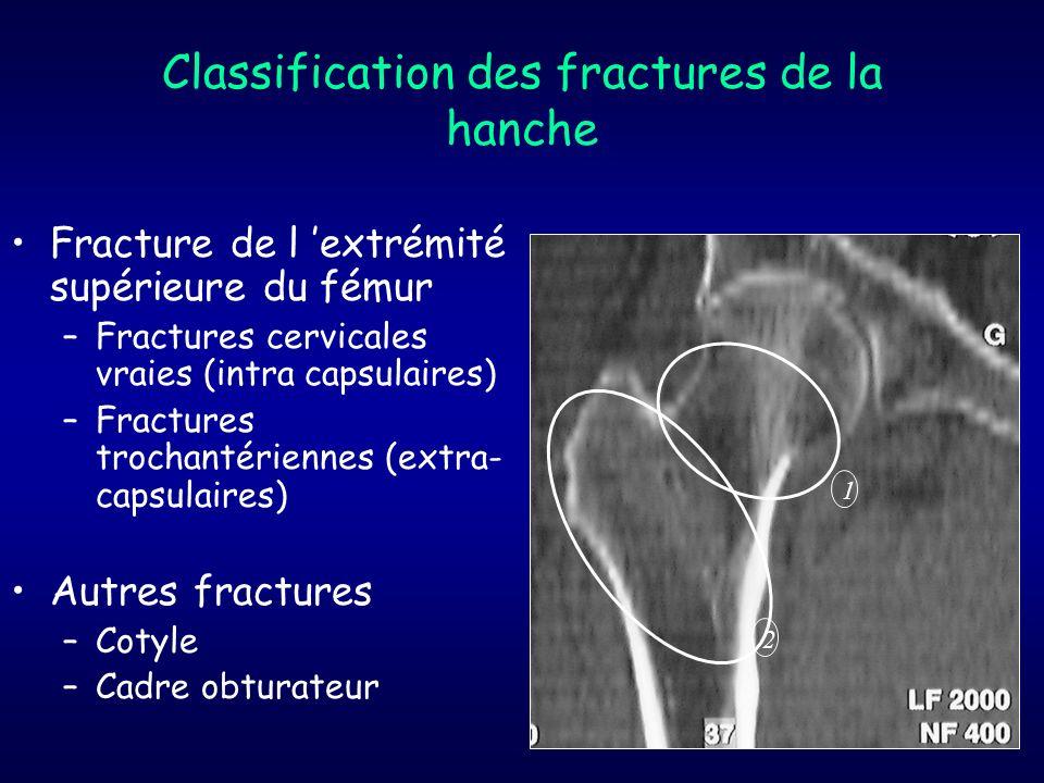 Classification des fractures de la hanche Fracture de l extrémité supérieure du fémur –Fractures cervicales vraies (intra capsulaires) –Fractures troc