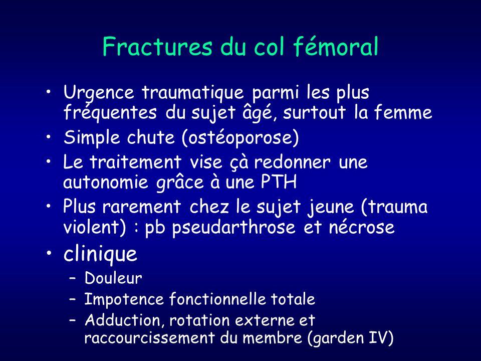 Fractures du col fémoral Urgence traumatique parmi les plus fréquentes du sujet âgé, surtout la femme Simple chute (ostéoporose) Le traitement vise çà