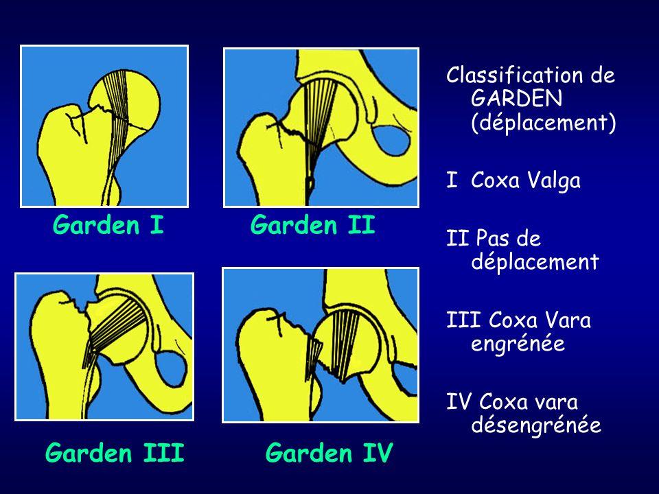 Garden IGarden II Garden III Garden IV Classification de GARDEN (déplacement) I Coxa Valga II Pas de déplacement III Coxa Vara engrénée IV Coxa vara d