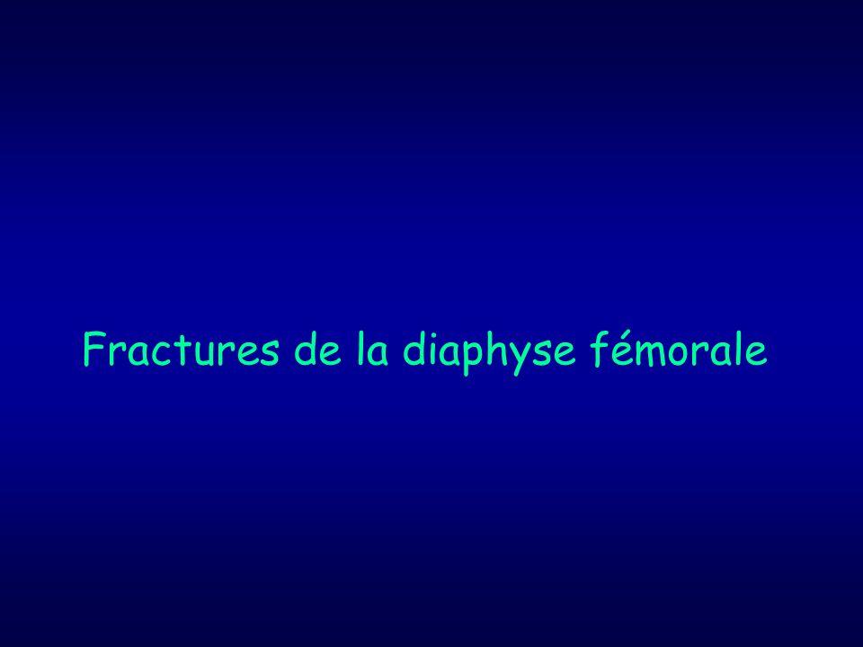 Fractures de la diaphyse fémorale