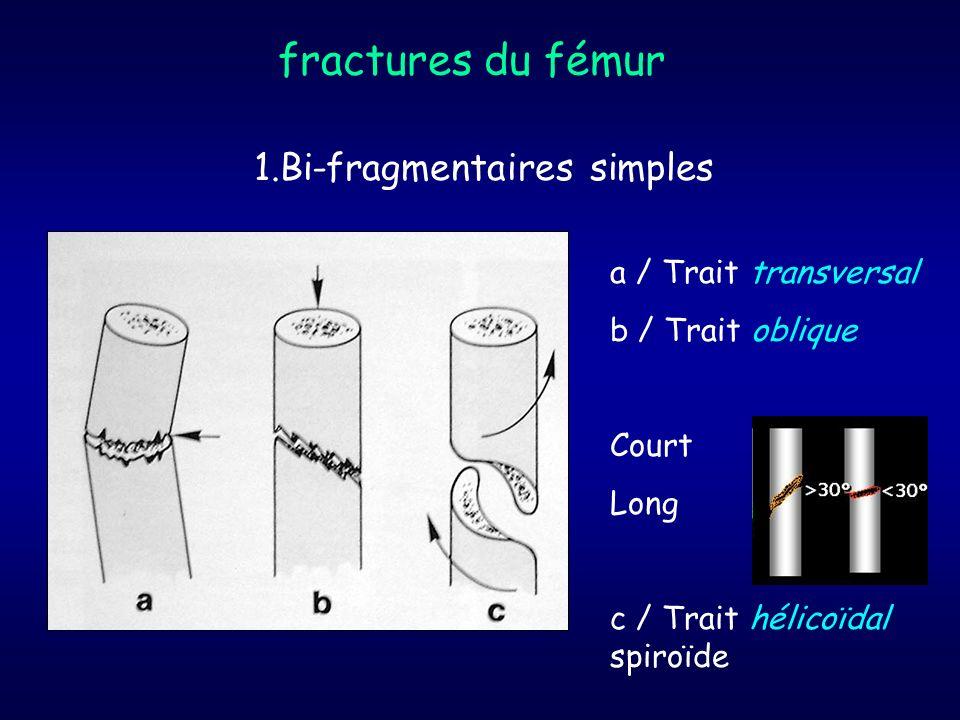 fractures du fémur 1.Bi-fragmentaires simples a / Trait transversal b / Trait oblique Court Long c / Trait hélicoïdal spiroïde