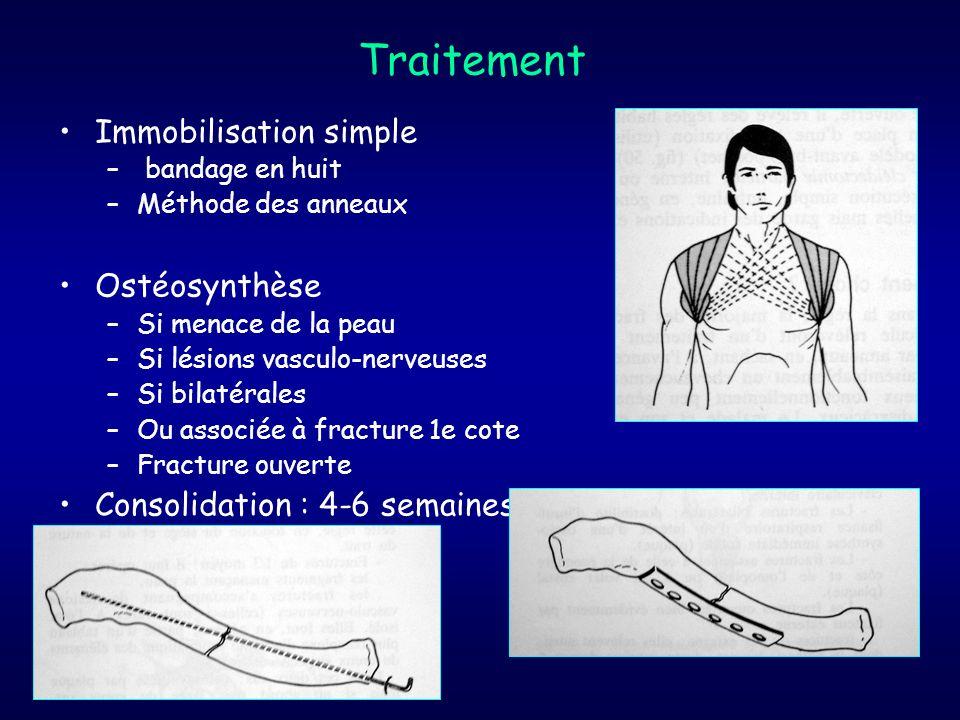 Traitement Immobilisation simple – bandage en huit –Méthode des anneaux Ostéosynthèse –Si menace de la peau –Si lésions vasculo-nerveuses –Si bilatéra