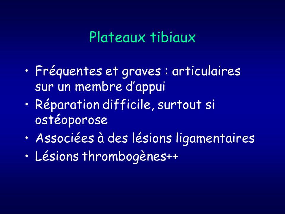 Plateaux tibiaux Fréquentes et graves : articulaires sur un membre dappui Réparation difficile, surtout si ostéoporose Associées à des lésions ligamen