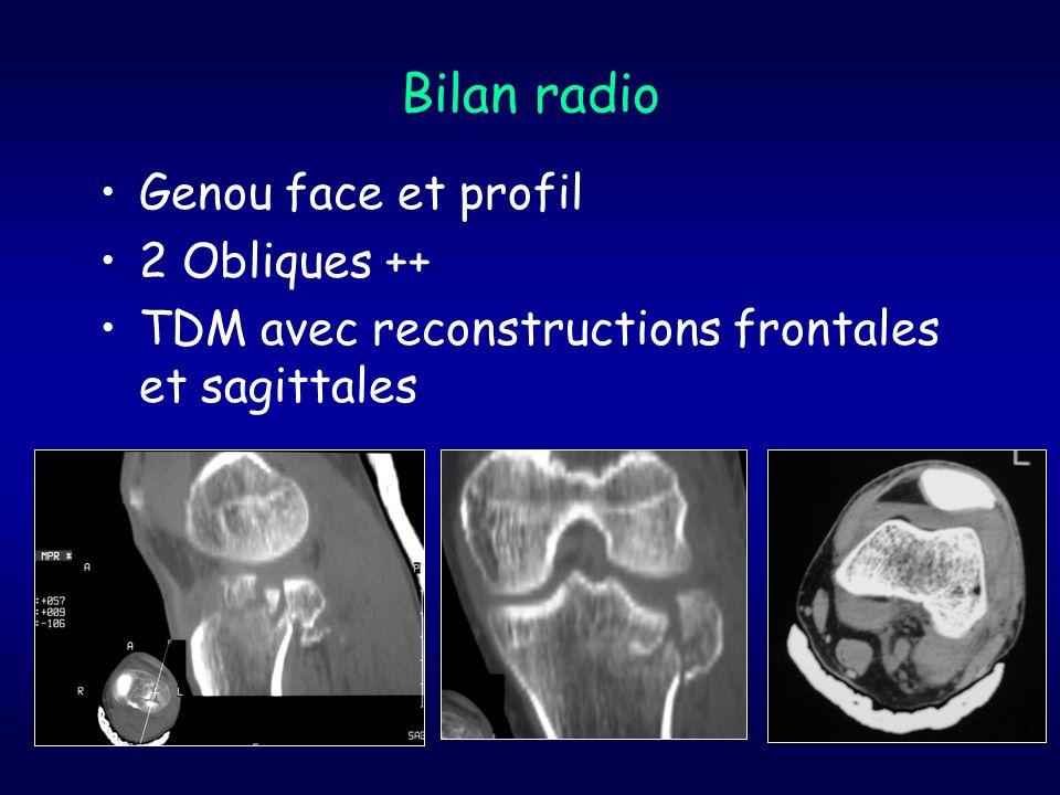 Bilan radio Genou face et profil 2 Obliques ++ TDM avec reconstructions frontales et sagittales