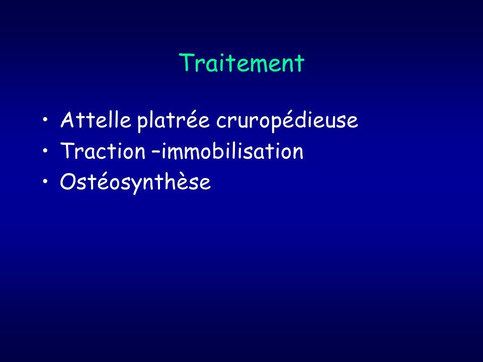 Traitement Attelle platrée cruropédieuse Traction –immobilisation Ostéosynthèse
