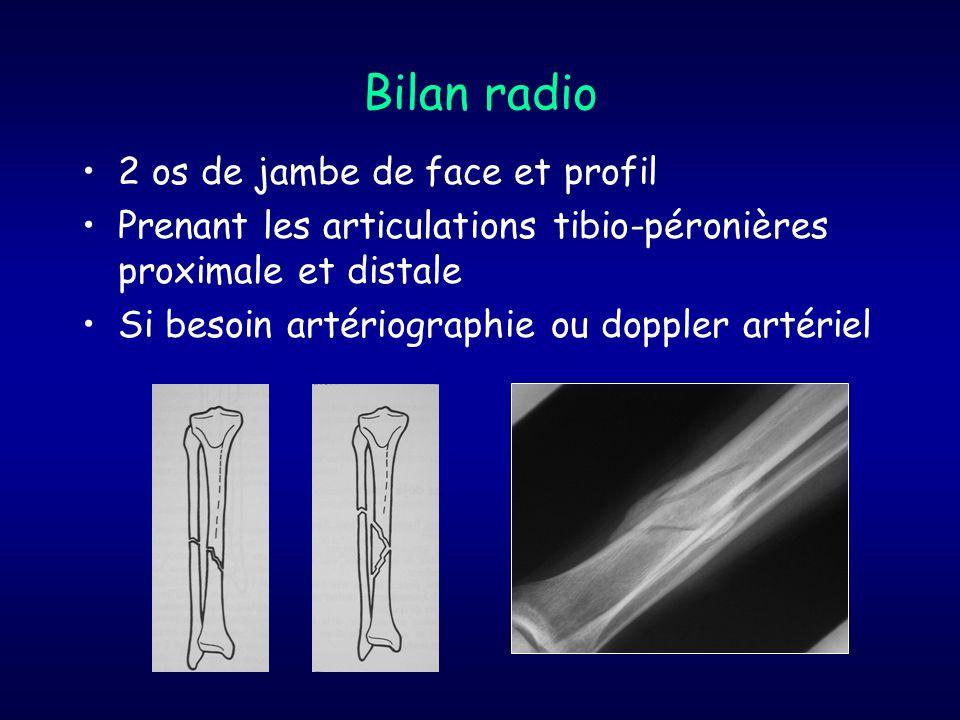 Bilan radio 2 os de jambe de face et profil Prenant les articulations tibio-péronières proximale et distale Si besoin artériographie ou doppler artéri