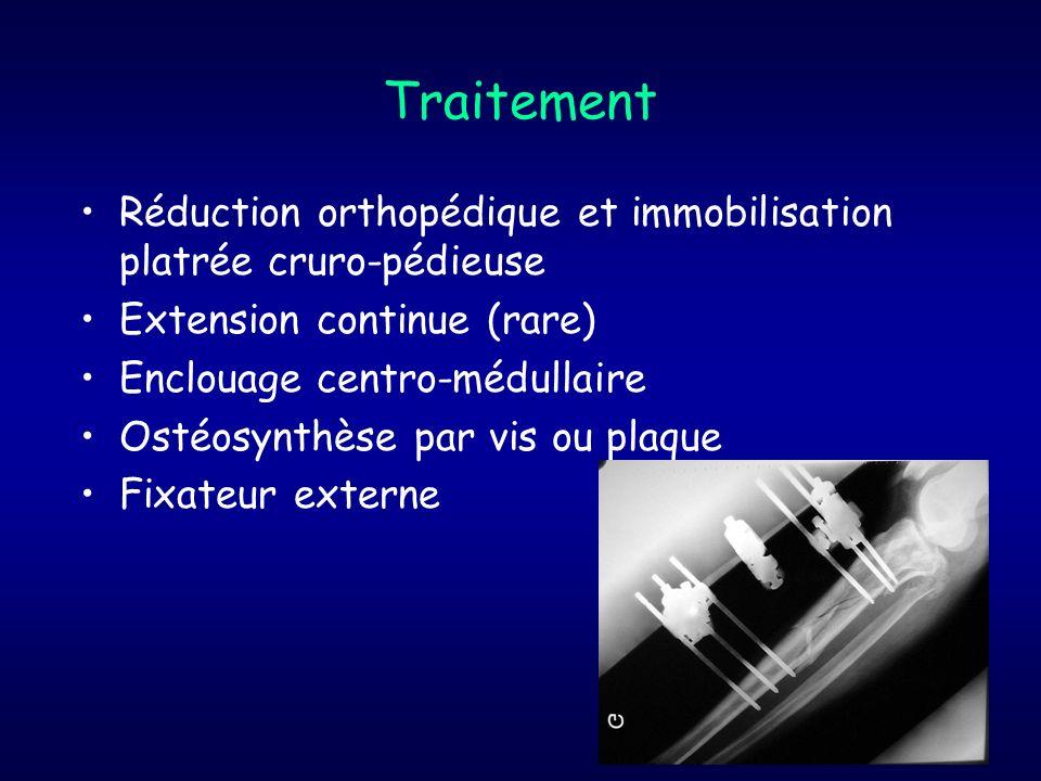 Traitement Réduction orthopédique et immobilisation platrée cruro-pédieuse Extension continue (rare) Enclouage centro-médullaire Ostéosynthèse par vis