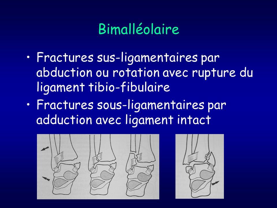 Bimalléolaire Fractures sus-ligamentaires par abduction ou rotation avec rupture du ligament tibio-fibulaire Fractures sous-ligamentaires par adductio