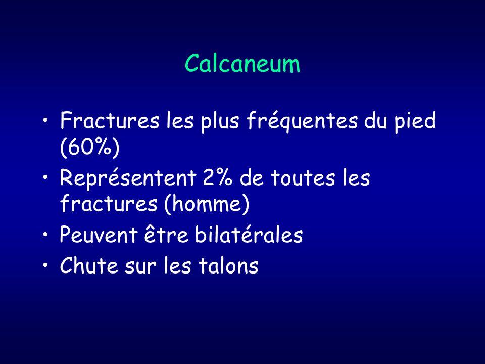 Calcaneum Fractures les plus fréquentes du pied (60%) Représentent 2% de toutes les fractures (homme) Peuvent être bilatérales Chute sur les talons