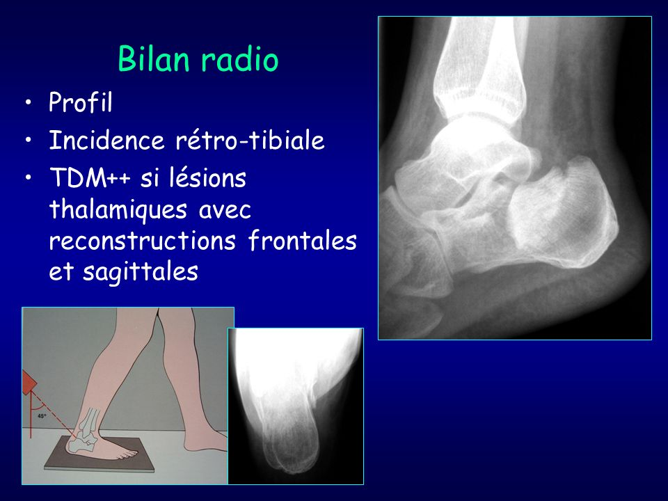Bilan radio Profil Incidence rétro-tibiale TDM++ si lésions thalamiques avec reconstructions frontales et sagittales