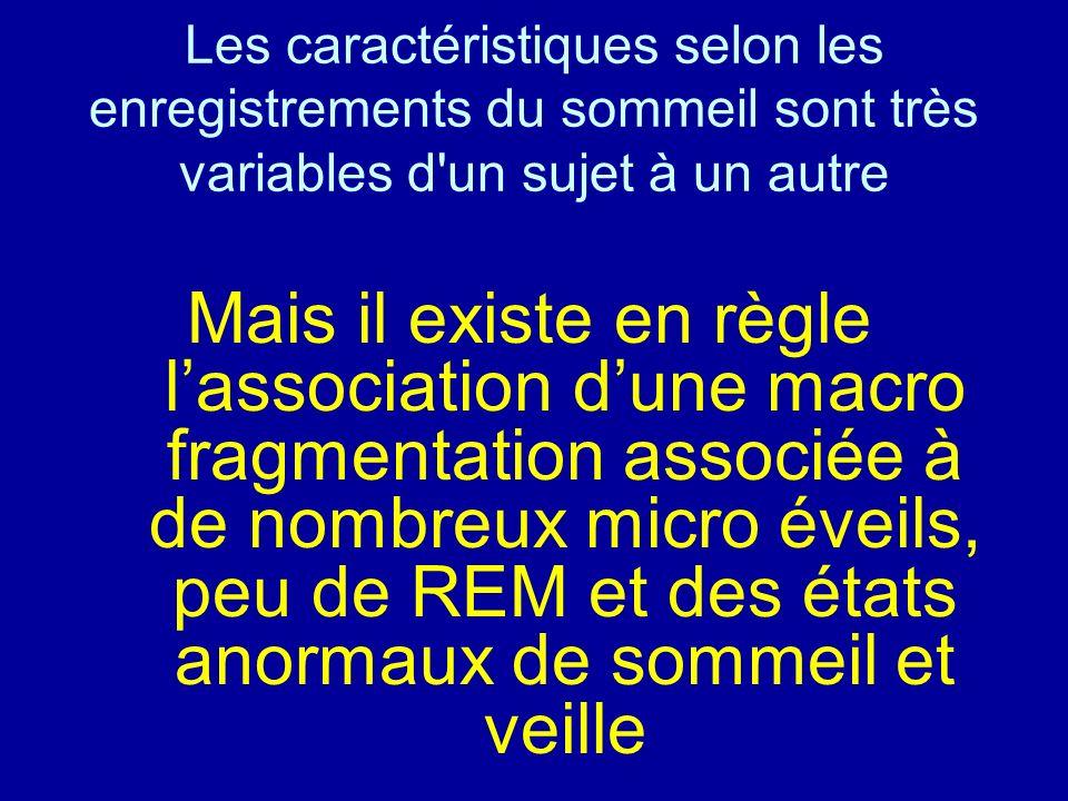 Les caractéristiques selon les enregistrements du sommeil sont très variables d'un sujet à un autre Mais il existe en règle lassociation dune macro fr