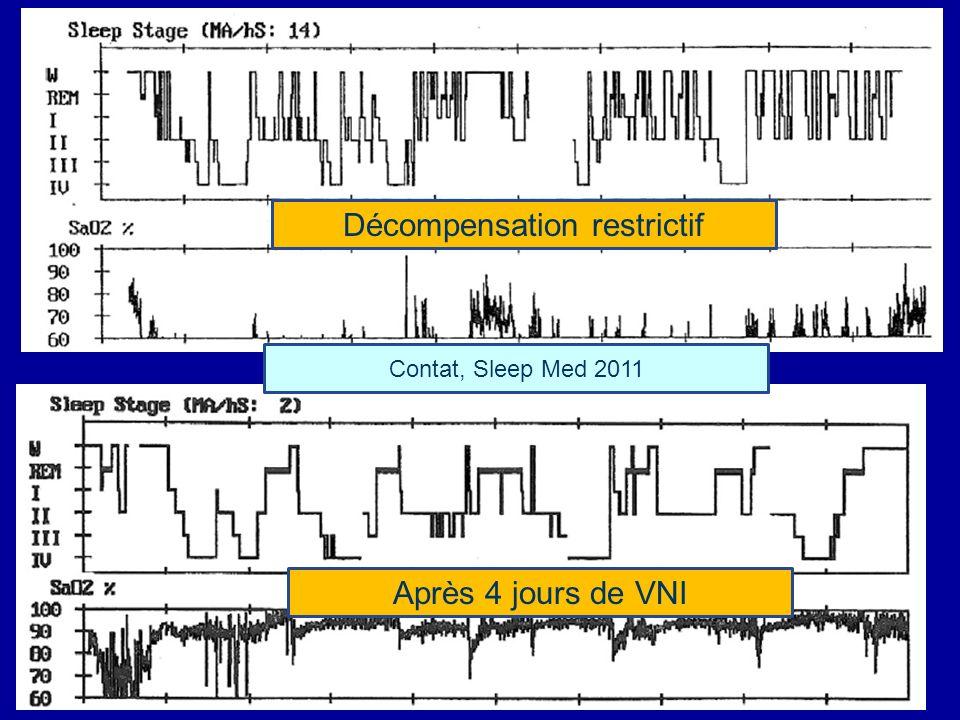 Décompensation restrictif Après 4 jours de VNI Contat, Sleep Med 2011