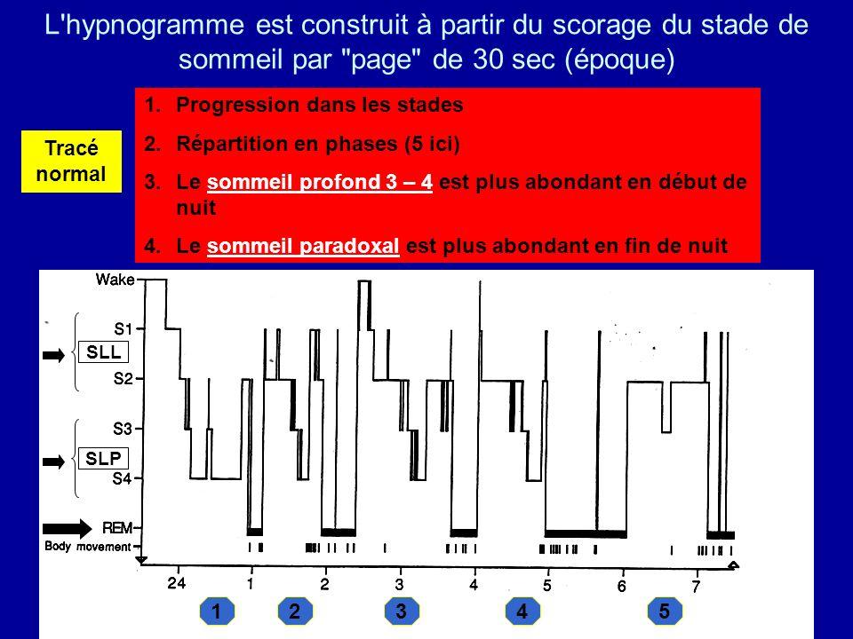 1.Progression dans les stades 2.Répartition en phases (5 ici) 3.Le sommeil profond 3 – 4 est plus abondant en début de nuit 4.Le sommeil paradoxal est