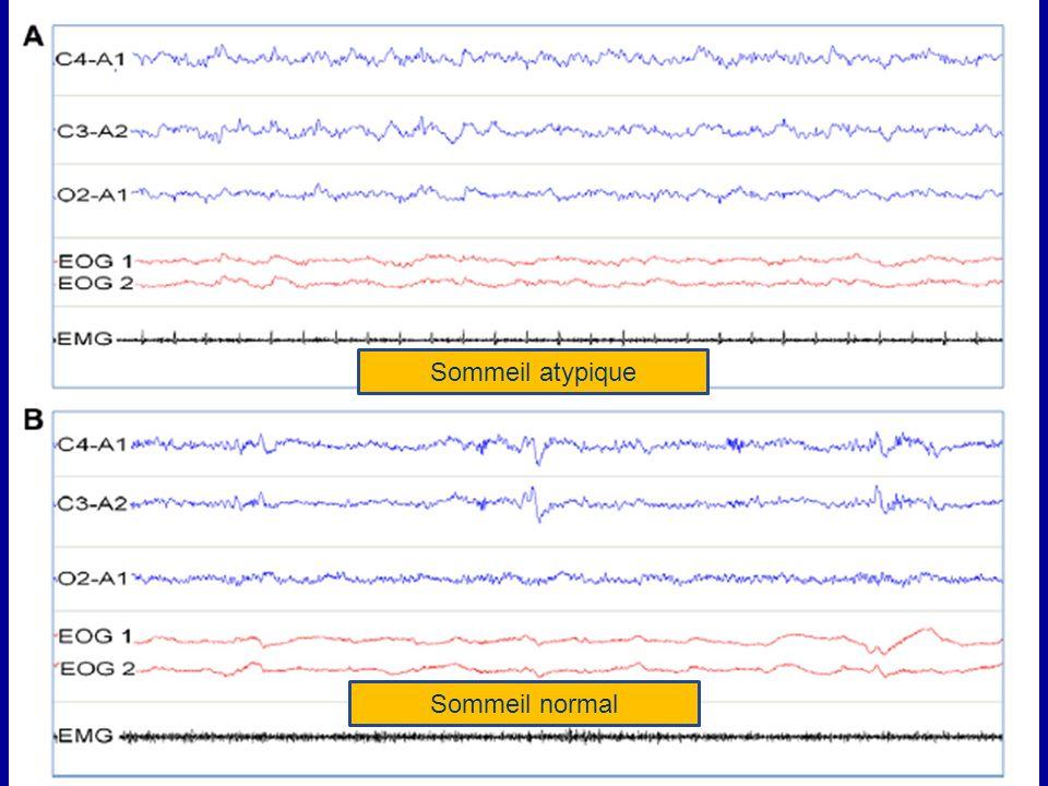 Résultats non significatifs mais peu de puissance et mauvaise appréciation du sommeil