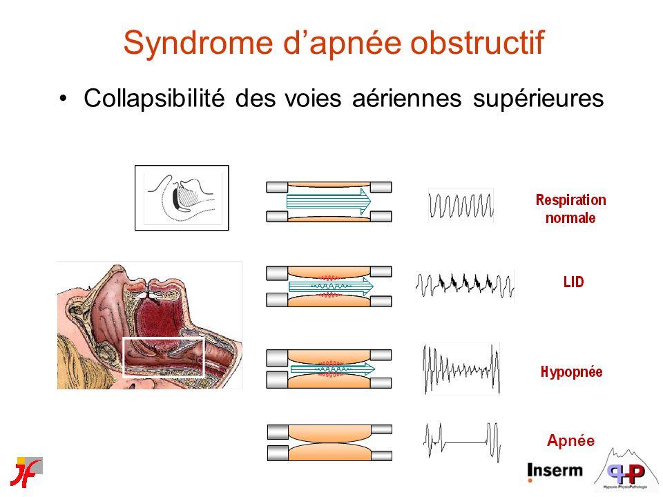 Syndrome dapnée obstructif Collapsibilité des voies aériennes supérieures Apnée