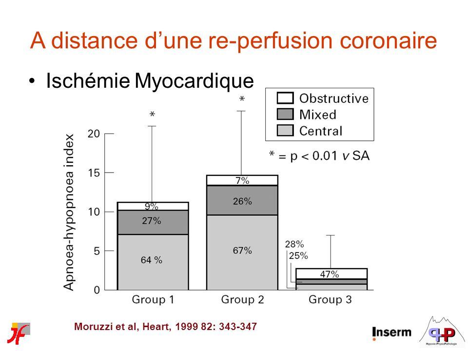 Ischémie Myocardique A distance dune re-perfusion coronaire Moruzzi et al, Heart, 1999 82: 343-347