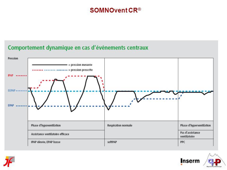 SOMNOvent CR ®