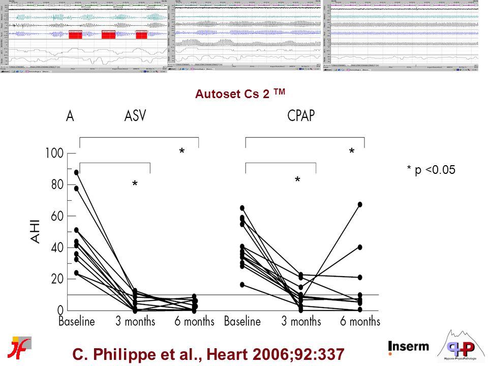 C. Philippe et al., Heart 2006;92:337 * p <0.05 * * * * Autoset Cs 2 TM