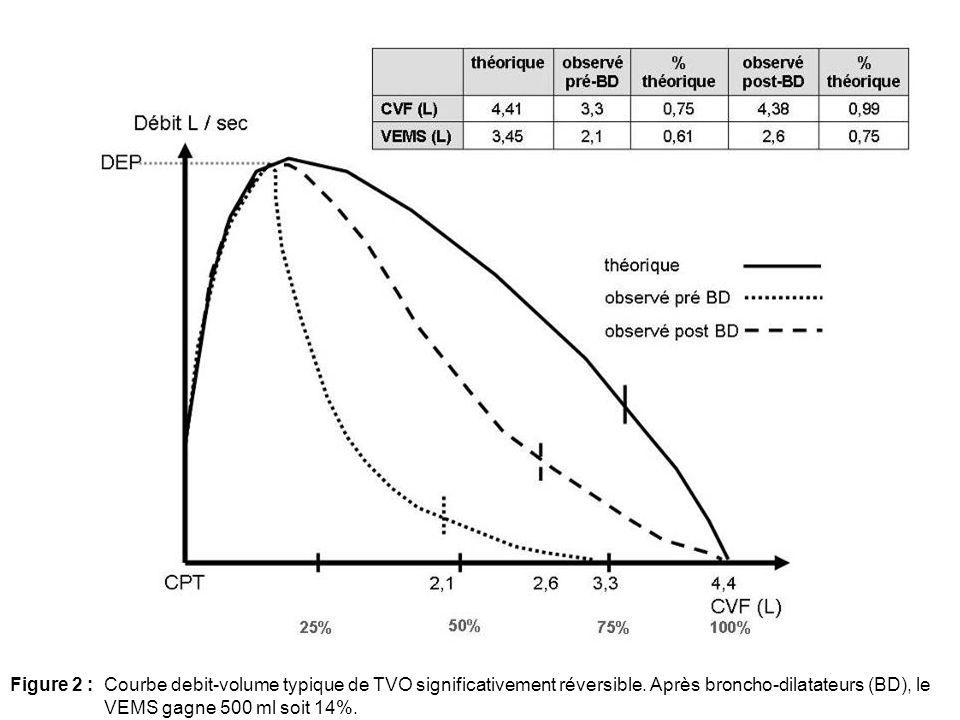 Figure 2 :Courbe debit-volume typique de TVO significativement réversible. Après broncho-dilatateurs (BD), le VEMS gagne 500 ml soit 14%.