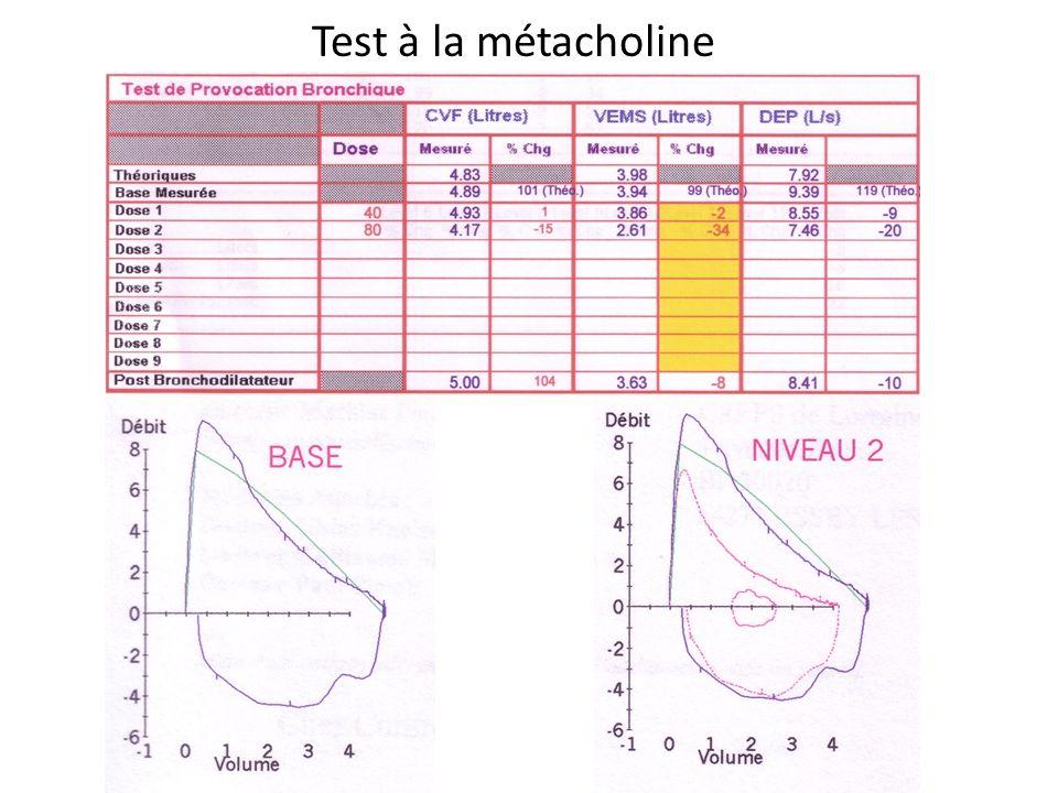 Test à la métacholine
