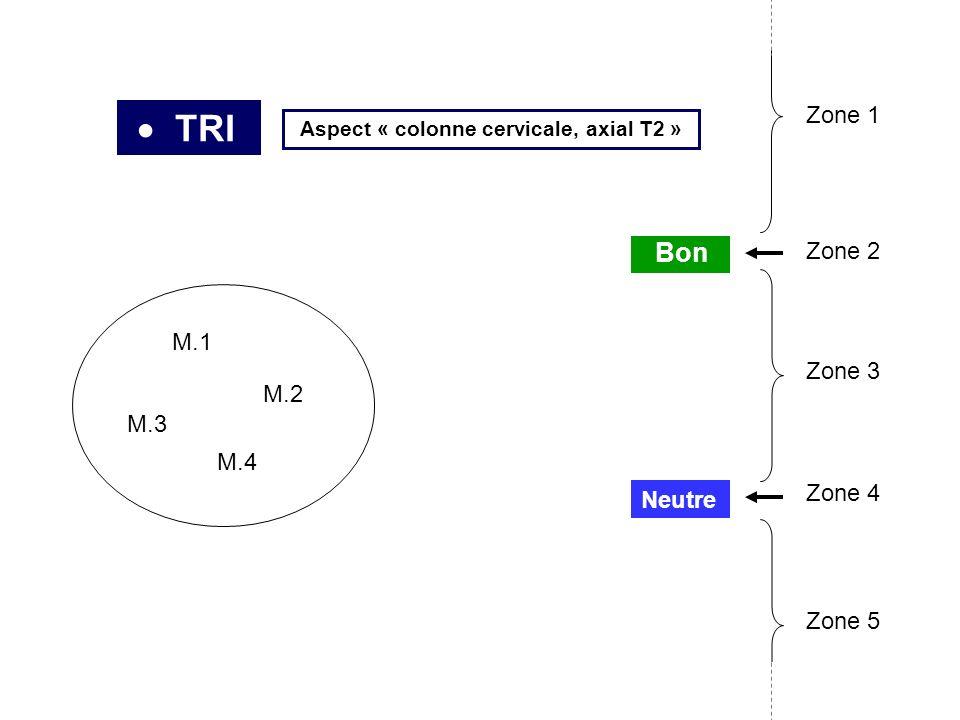 TRI M.1 M.2 M.3 M.4 Neutre Bon Zone 2 Zone 3 Zone 4 Zone 5 Zone 1 Aspect « colonne cervicale, axial T2 »