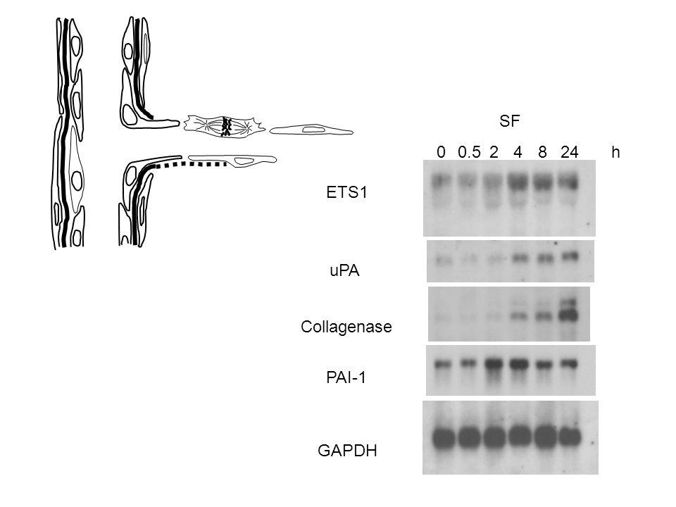 00.524824h ETS1 uPA Collagenase PAI-1 GAPDH SF