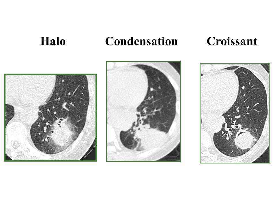 HaloCondensationCroissant