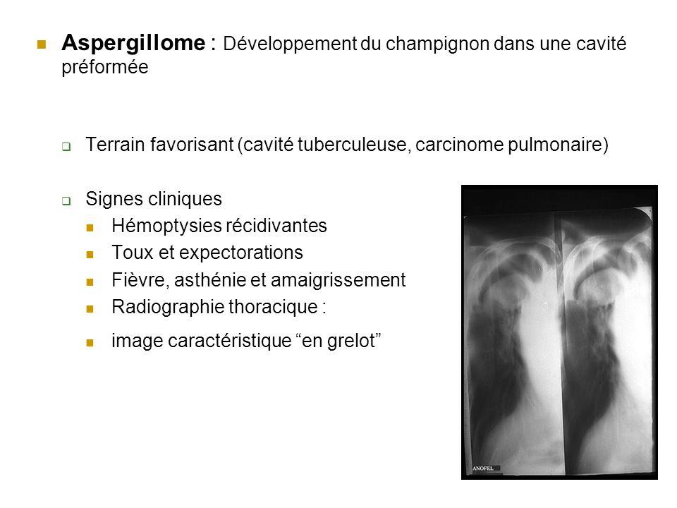 Aspergillome : Développement du champignon dans une cavité préformée Terrain favorisant (cavité tuberculeuse, carcinome pulmonaire) Signes cliniques H