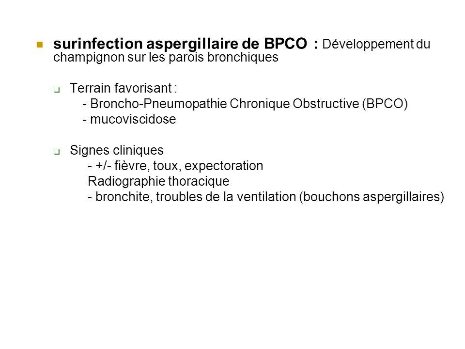 surinfection aspergillaire de BPCO : Développement du champignon sur les parois bronchiques Terrain favorisant : - Broncho-Pneumopathie Chronique Obstructive (BPCO) - mucoviscidose Signes cliniques - +/- fièvre, toux, expectoration Radiographie thoracique - bronchite, troubles de la ventilation (bouchons aspergillaires)