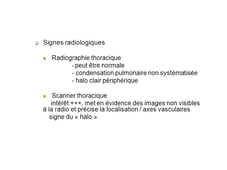 Signes radiologiques Radiographie thoracique - peut être normale - condensation pulmonaire non systématisée - halo clair périphérique Scanner thoracique intérêt +++, met en évidence des images non visibles à la radio et précise la localisation / axes vasculaires signe du « halo »