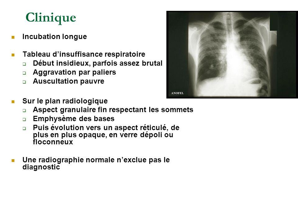 Clinique Incubation longue Tableau dinsuffisance respiratoire Début insidieux, parfois assez brutal Aggravation par paliers Auscultation pauvre Sur le
