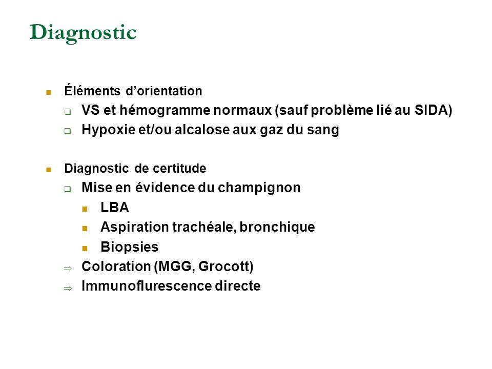 Diagnostic Éléments dorientation VS et hémogramme normaux (sauf problème lié au SIDA) Hypoxie et/ou alcalose aux gaz du sang Diagnostic de certitude M