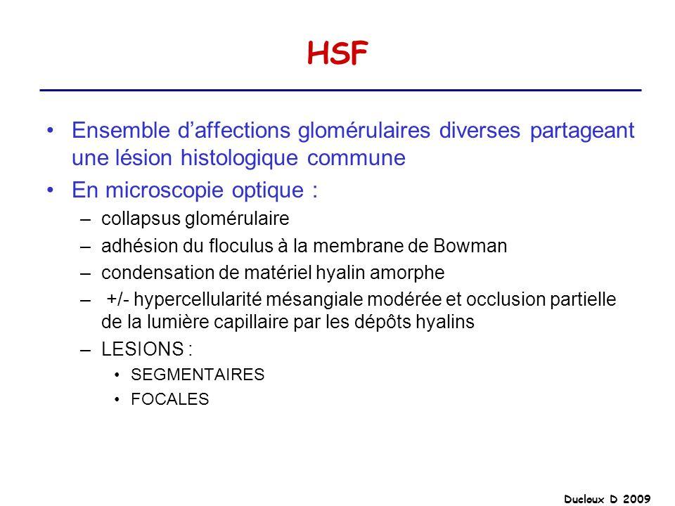 Ducloux D 2009 HSF Ensemble daffections glomérulaires diverses partageant une lésion histologique commune En microscopie optique : –collapsus glomérul