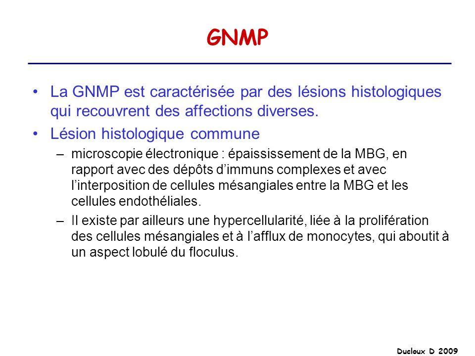 Ducloux D 2009 GNMP La GNMP est caractérisée par des lésions histologiques qui recouvrent des affections diverses. Lésion histologique commune –micros