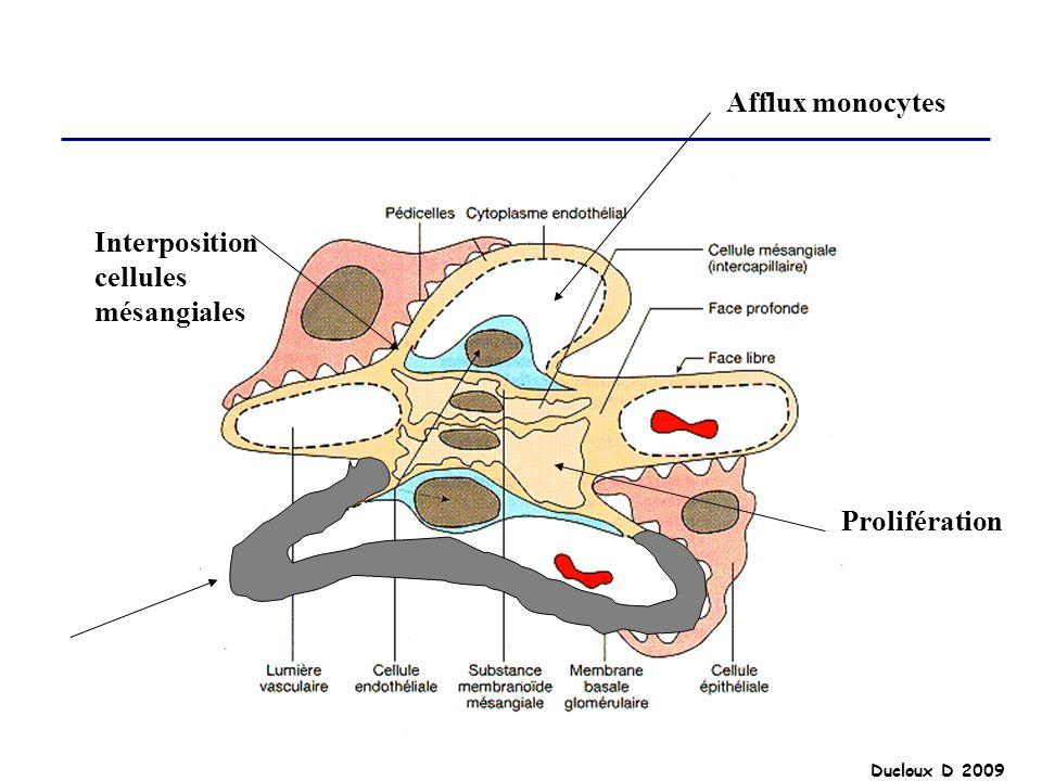 Ducloux D 2009 Interposition cellules mésangiales Prolifération Afflux monocytes